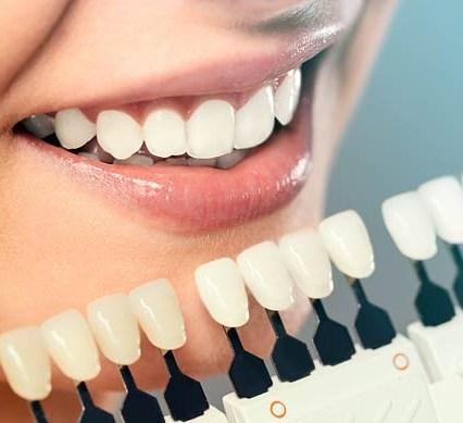 intra.laser.dental