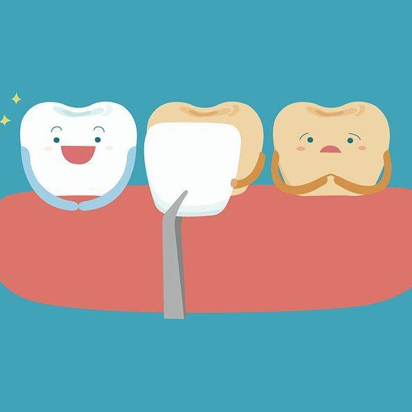 intra.laser.dental2